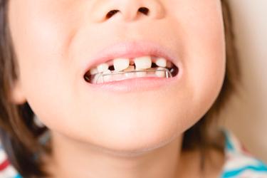 お子さんの歯並び、矯正